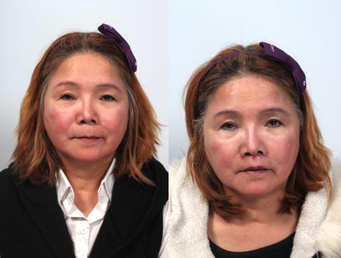 左圖是手術前,右圖是手術 後,縮人中手術後人中明顯變短,且唇型明顯。